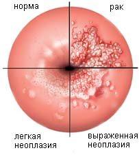 Вирус папилломы человека 31 тип лечение