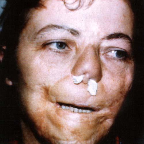 фото врожденный сифилис