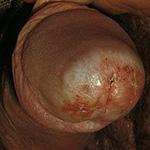 Склероатрофический лишай полового члена